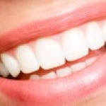Tooth Whitening With the Experts