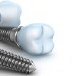 Dental Implants: Your Journey with Us