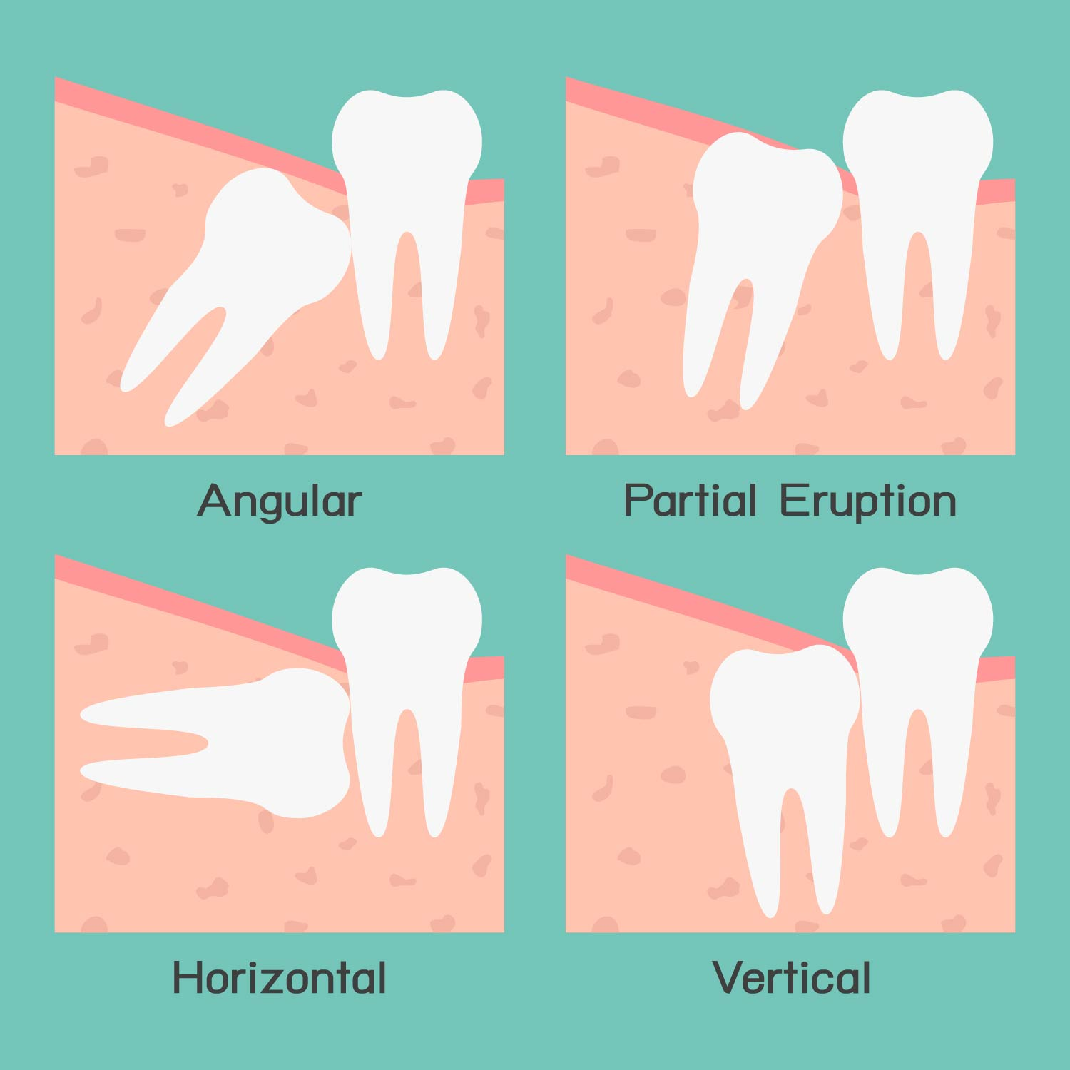 Wisdom Tooth Extractions Tewantin Dental Centre