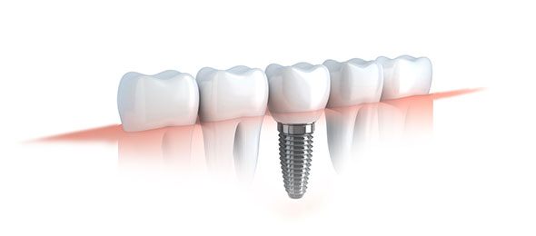 dental implants noosa