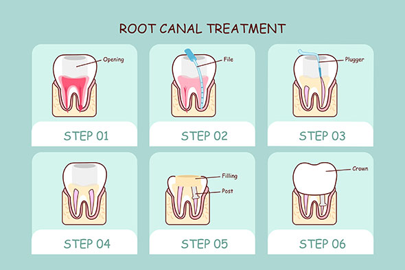 root canal treatment, root canal therapy